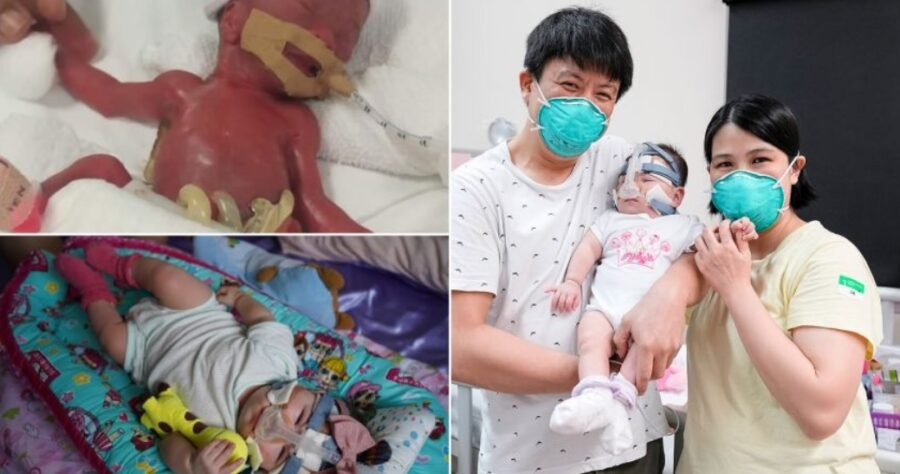 najmniejszy-noworodek-na-swiecie-po-13-miesiacach-opuscil-szpital